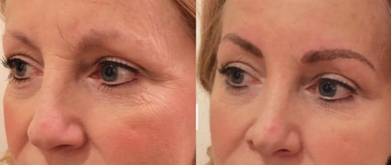 Before and after photo of microblading by Vanity & Mascara in Morristown, NJ.